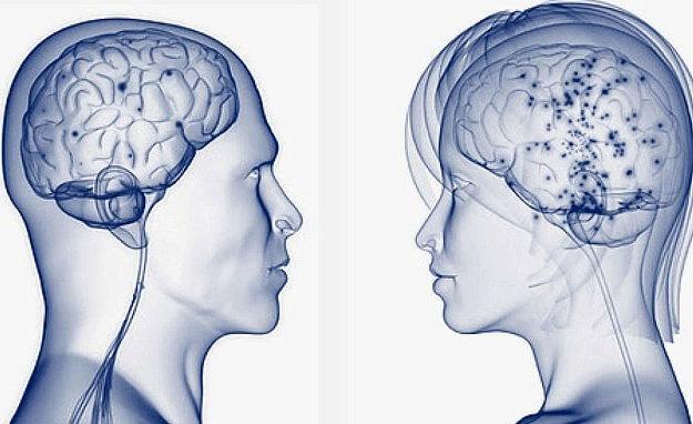 размер мозга