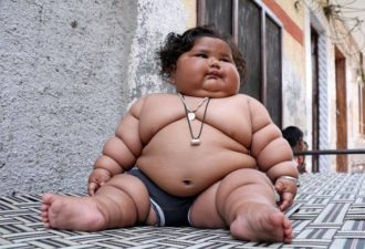 ожирение ребенка
